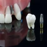 fogbeültetés - fix fogsor