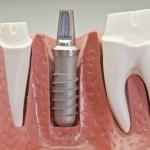 Fix fogsor készítés implantációval.